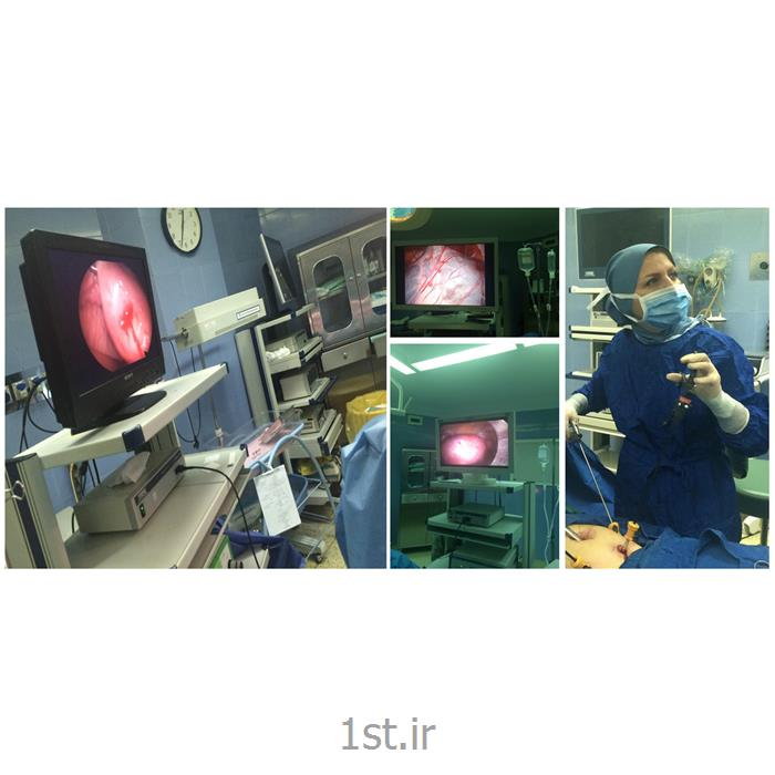 عکس جراحیکولپوسکوپی مشاهده اپی تلیوم سرویکس