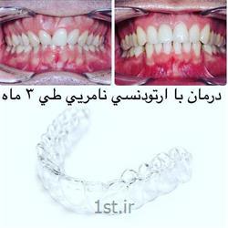 عکس خدمات درمانی دندانپزشکیارتودنسی متحرک و ثابت دندان / نامرئی اینویزالاین ، لینگوال ، براکت