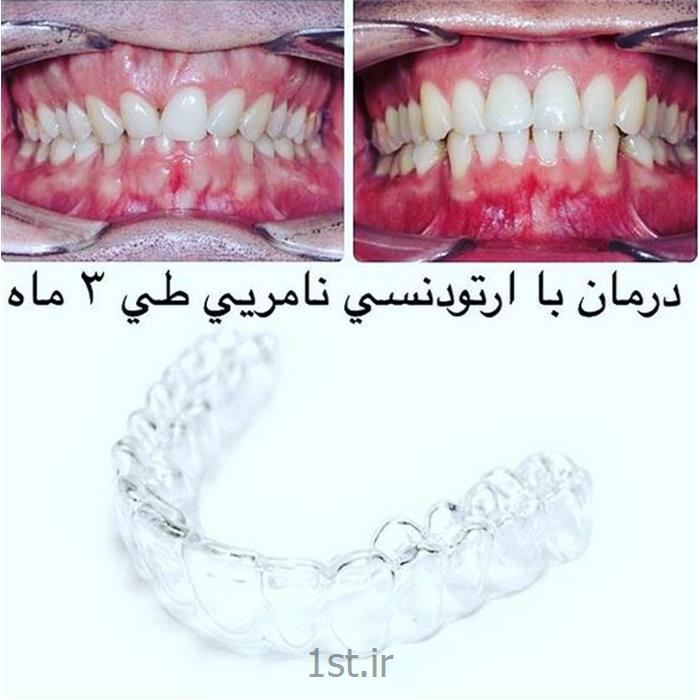 ارتودنسی متحرک و ثابت دندان / نامرئی اینویزالاین ، لینگوال ، براکت