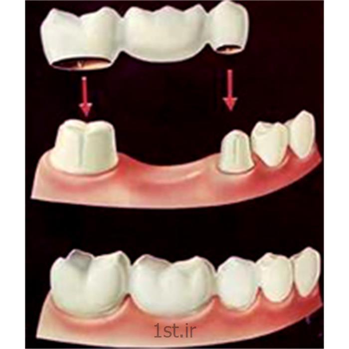 پل یا بریج ثابت سرامیکی دندان / دندانپزشکی مروارید