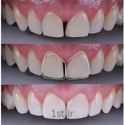 عکس خدمات درمانی دندانپزشکیاصلاح و بستن فاصله میان دندان روش ترمیم ، لامینیت یا کامپازیت ونیر