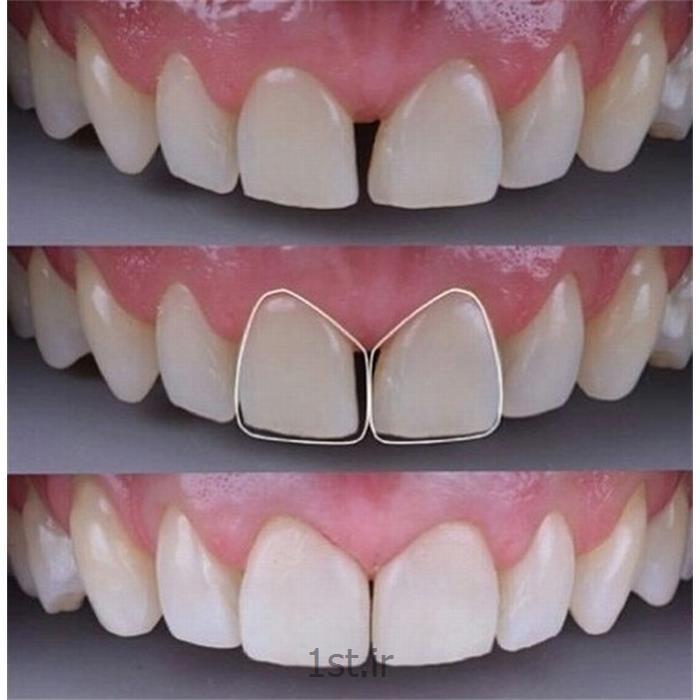 اصلاح و بستن فاصله میان دندان روش ترمیم ، لامینیت یا کامپازیت ونیر