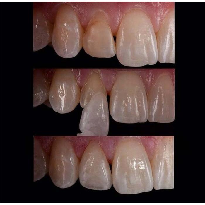 عکس خدمات درمانی دندانپزشکیدرمان و اصلاح شکل و فرم دندان ها به روش لامینیت یا ونیر کامپازیت