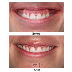 اصلاح و درمان لبخند لثه ای با روش تزریق بوتاکس