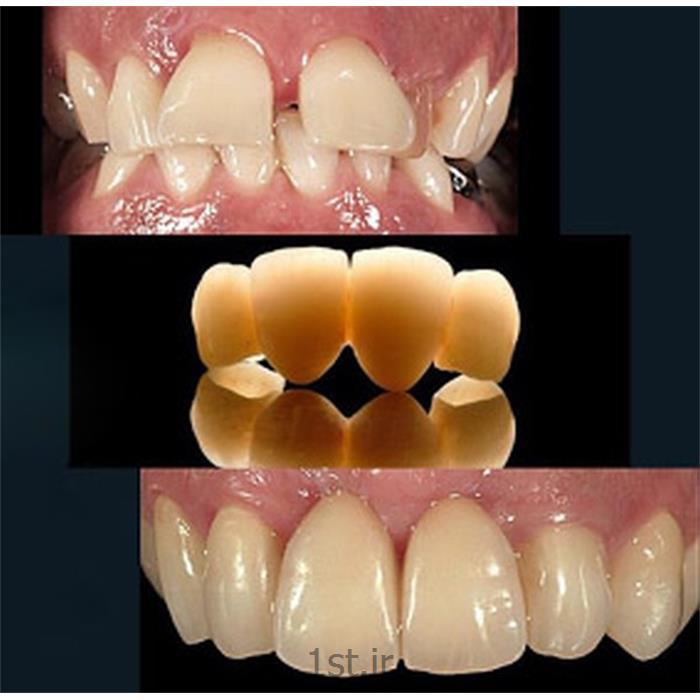 عکس خدمات درمانی دندانپزشکیدرمان و اصلاح بد شکل و بد فرم بودن دندان ها به روش روکش