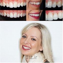 درمان و اصلاح بد شکل و بد فرم بودن دندان ها به روش روکش