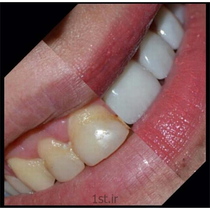 عکس خدمات درمانی دندانپزشکیسفید کردن دندان ها روش لامینیت یا ونیر کامپازیت