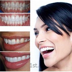 سفید کردن دندان ها روش لامینیت یا ونیر کامپازیت