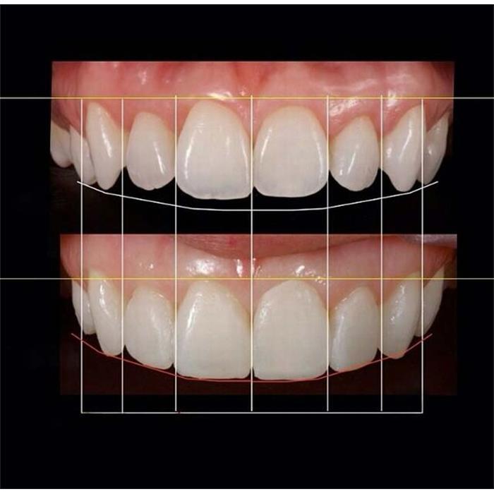عکس خدمات درمانی دندانپزشکیاصلاح طرح لبخند دندان و زیبایی خنده / دندانپزشکی مروارید