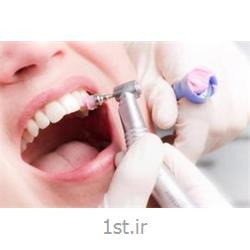عکس خدمات درمانی دندانپزشکیسفید کردن دندان ها روش جرمگیری و پالیش