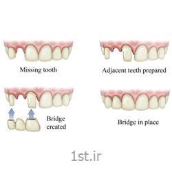 عکس خدمات درمانی دندانپزشکیپل یا بریج ثابت فلزی دندان / دندانپزشکی مروارید