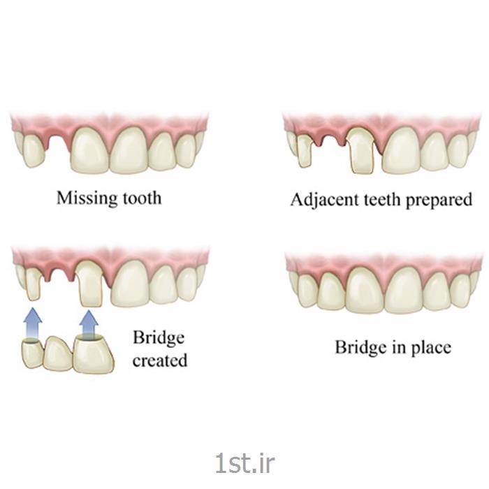 پل یا بریج ثابت فلزی دندان / دندانپزشکی مروارید