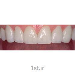 عکس خدمات درمانی دندانپزشکیزیبایی خنده و اصلاح طرح لبخند عاقلانه / دندانپزشکی مروارید
