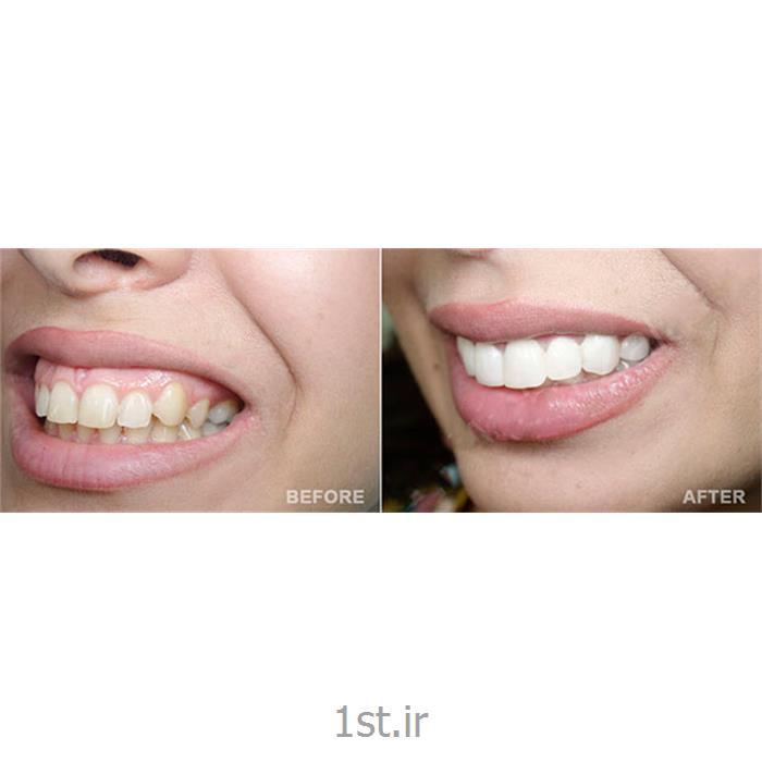 عکس خدمات درمانی دندانپزشکیاصلاح و درمان لبخند لثه ای با روش جراحی لیزری