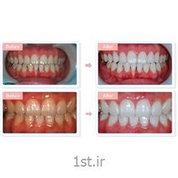 اصلاح و درمان لبخند لثه ای با روش جراحی لیزری