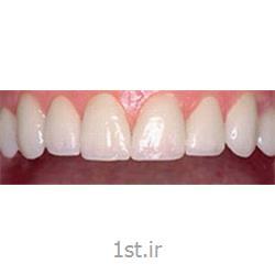 زیبایی خنده و اصلاح طرح لبخند اسپرت / دندانپزشکی مروارید