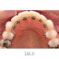 عکس خدمات درمانی دندانپزشکیارتودنسی نامرئی لینگوال یا زبانی ( پنهان از داخل و پشت دندان )