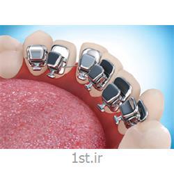ارتودنسی نامرئی لینگوال یا زبانی ( پنهان از داخل و پشت دندان )