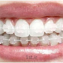 عکس خدمات درمانی دندانپزشکیارتودنسی ثابت با براکت سرامیکی و شیشه ای همرنگ دندان