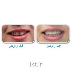 عکس خدمات درمانی دندانپزشکیمرتب و ردیف کردن بدون ارتودنسی دندان / دندانپزشکی مروارید