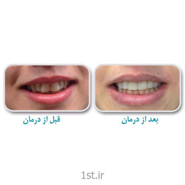 مرتب و ردیف کردن بدون ارتودنسی دندان / دندانپزشکی مروارید