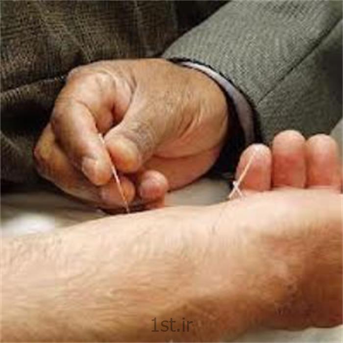 درمان اعتیاد با طب سوزنی
