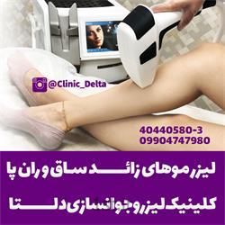 لیزر موهای زائد پا با دستگاه مدیو استار اسکلپیون