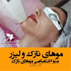 لیزر موهای زائد صورت - لیزر موهای زائد غرب تهران